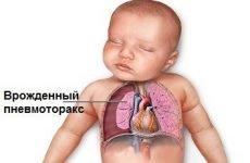 Пневмоторакс легкого – 6 методів діагностики: рентген, пункція та ін.