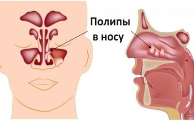 Поліпи в носі у дорослих і дітей: симптоми і лікування