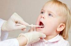 Пронос у дитини, соплі, кашель і температура: причини і лікування