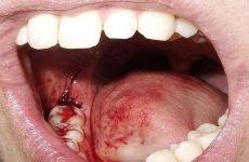 Після видалення зуба мудрості болить горло, що робити?