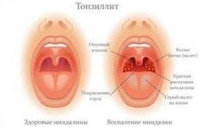 Препарати при тонзиліті у дорослих та дітей – які найбільш ефективні