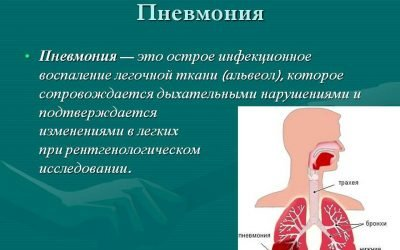 Причини пневмонії та її класифікація по етіології