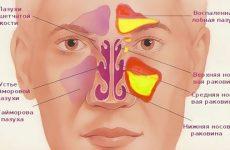 Ознаки гаймориту у жінок і чоловіків: види і лікування