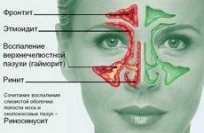 Ознаки і методи лікування етмоїдиту у дорослих