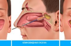 Прокол при гаймориті: операція і лікування гаймориту лазером