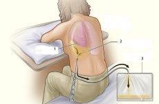 Пункція плевральної порожнини при гідротораксом і його рентгенограма?