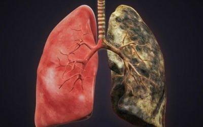 Рак легенів: 3 види кашлю, симптоми та ознаки у дорослих