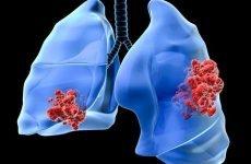 Рак легенів (1,2,3,4 стадія) 8 симптомів перед смертю, скільки живуть?