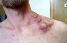 Рак лімфовузлів на шиї: симптоми і ознаки онкології