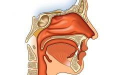 Рак носоглотки: симптоми і ознаки, методи лікування, прогноз, профілактика