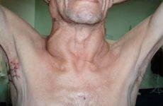 Рак шиї: симптоми, ознаки, діагностика і лікування