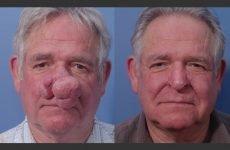 Ринофіма носа: симптоми, причини і методи лікування