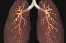 Саркоїдоз легень: прогноз для життя, чи допоможуть народні засоби?