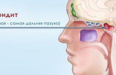 Сфеноидит: симптоми і лікування гострої та хронічної форми
