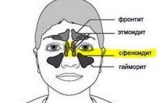 Сфеноидит: симптоми і лікування у дорослих і дітей