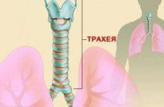 Симптоми і організація ефективного лікування трахеїту: препарати і процедури терапії захворювання