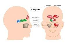 Синусит і гайморит: у чому різниця і чим відрізняються захворювання