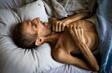 Скільки живуть з туберкульозом: інвалідність і рецидив у хворих