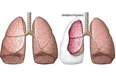 Спонтанний пневмоторакс – 4 правила невідкладної допомоги та причини виникнення