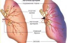 Страх смерті й інші ознаки ТЕЛА – діагностика на ЕКГ і рентгені