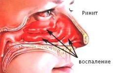 Сухий риніт: симптоми і лікування небезпечного нежиті