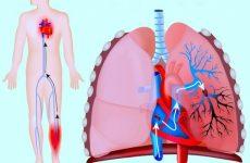 ТЕЛА (тромбоемболія легеневої артерії) – невідкладна допомога