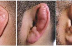 Травми вуха: симптоми і лікування ударів та ушкоджень