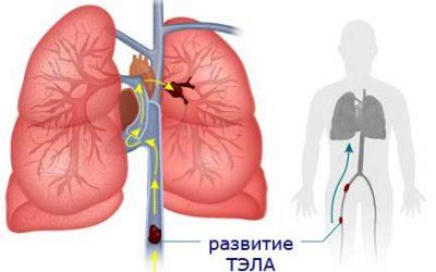Тромбоемболія легеневої артерії – 3 причини, симптоми і лікування