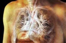 Туберкульоз легенів: симптоми та ознаки у дорослих (4 стадії розвитку)
