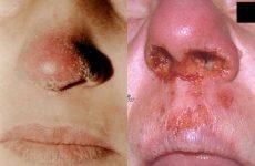 Туберкульоз носа: симптоми, лікування та профілактика