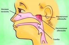 Видалення мигдаликів при хронічному тонзиліті: операція та реабілітація після