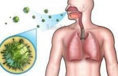 Вірусна ангіна у дітей і дорослих: симптоми і лікування
