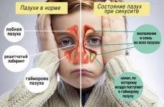 Вірусний гайморит і синусит: симптоми і лікування