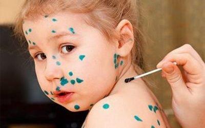 Запалення лімфовузлів при вітряній віспі у дітей і дорослих: лікування