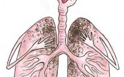 Чи можливо лікування туберкульозу народними засобами в домашніх умовах?