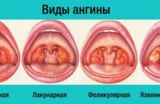 Виразково-плівчаста ангіна: симптоми, лікування, ускладнення