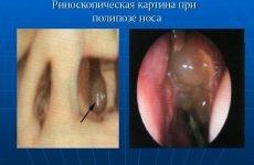 Закладеність носа без нежиті: причини і лікування