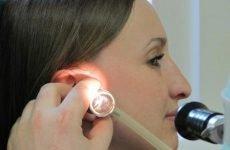 Заклало вухо: що робити в домашніх умовах, якщо довго не проходить