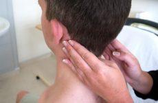 Потиличні лімфовузли збільшені: причини і лікування запалення