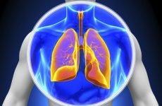 Рідина в легенях: причини і лікування – чому вона накопичується, 7 причин