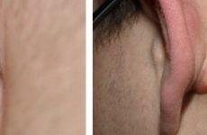 Жировики за вухами: причини і лікування, профілактика