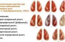12 симтопов хронічного гіпертрофічного риніту – методи лікування