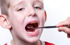 Аденоїди 1 ступеня у дитини: симптоми та лікування — Лікуємо горло