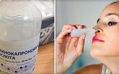 Амінокапронова кислота при нежиті, аденоїдах і грві у дітей