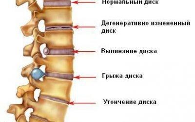 Запаморочення при шийному остеохондрозі: лікування головних болів, як швидко зняти симптоми препаратами
