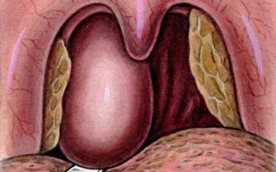 Абсцес горла – лікування, симптоми, причини та наслідки