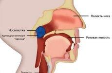 Аденоїдит: лікування і симптоми гострої і хронічної форми