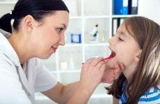Болять гланди і мигдалики – можливі захворювання та їх лікування