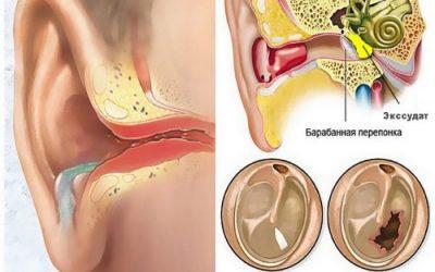 Ексудативний отит середнього вуха – як лікувати захворювання у дорослих