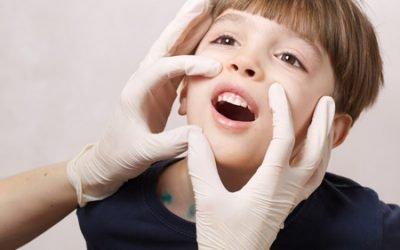 Герпетичний стоматит у дітей – лікування захворювання у дитини
